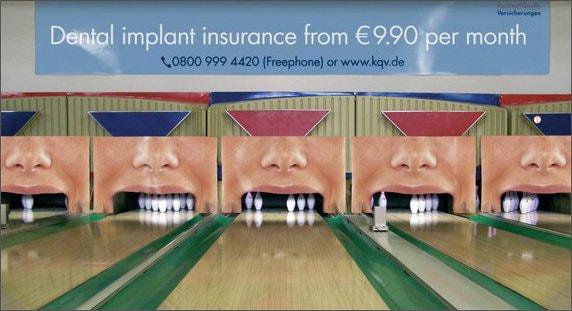 31. Dental implants
